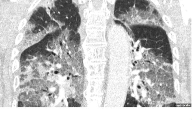 Holenderskie Centrum Medyczne Zuyderland opublikowało zdjęcie rentgenowskie płuc pacjenta z Covid-19. Ku przestrodze. Zobaczcie na zdjęciach jak dramatyczny