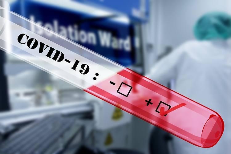Koronawirus. W Radomiu i w powiecie radomskim epidemia rozszerza się, aż 62 osoby zachorowało na COVID-19