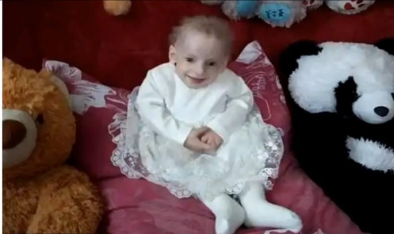 Ukraina: Progeria zabiła Annę Sakidon. Dziewczynka zmarła ze starości w wieku 8 lat