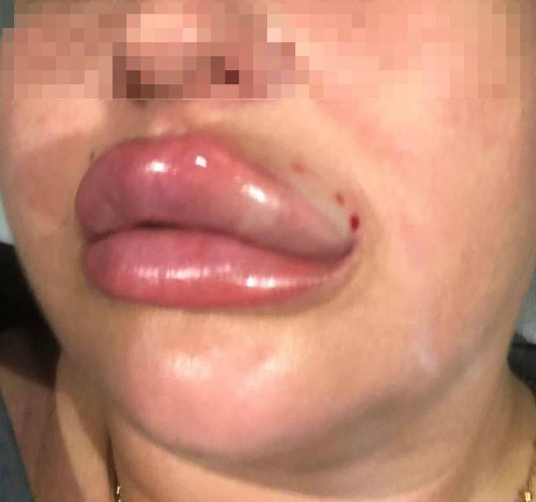 Pani Laura chciała powiększyć usta i wyszczuplić twarz przez wprowadzenie pod skórę samorozpuszczalnych nici. W najgorszym przypadku mogła stracić życie