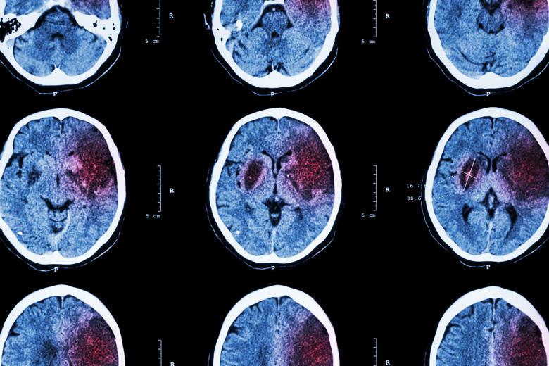 Udar niedokrwienny mózgu następuje na skutek niedrożności tętnic zaopatrujących ten narząd w krew. Stan ten prowadzi do obumierania komórek nerwowych