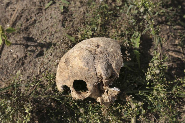 Czaszka i kości - ludzkie szczątki leżą tuż przy ścieżce, którą spacerują mieszkańcy. Podobno bawią się nimi dzieci.