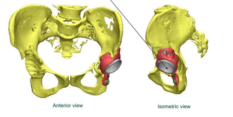 Wstawią w biodro implant z drukarki 3D