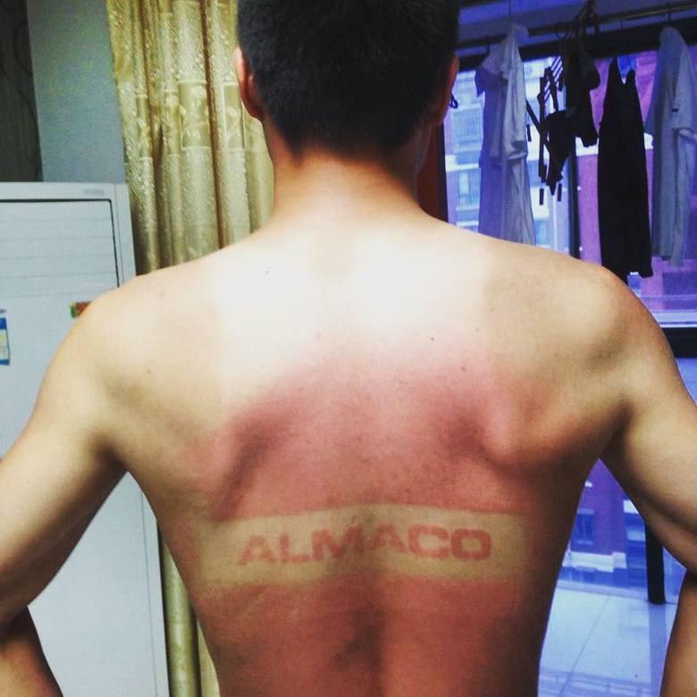 Tatuaże wypalane słońcem. Nowa, wakacyjna moda, która jest bardzo niebezpieczna dla skóry [24. 7. 2019 r.]