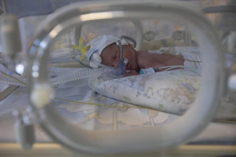 Lekarze obawiają się cięć wycen. Szpital dziecięcy w Lublinie może stracić nawet 3 mln zł rocznie.