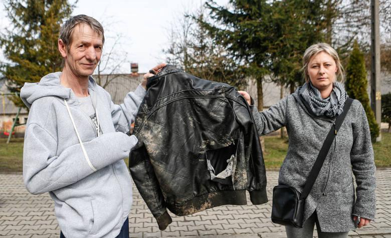 Roman Rozwadowski z córką pokazują ślady, które pozostawiły niedźwiedzie pazury i zęby. Gdyby nie ta kurtka, kominiarka i plecak, obrażeń byłoby więcej.