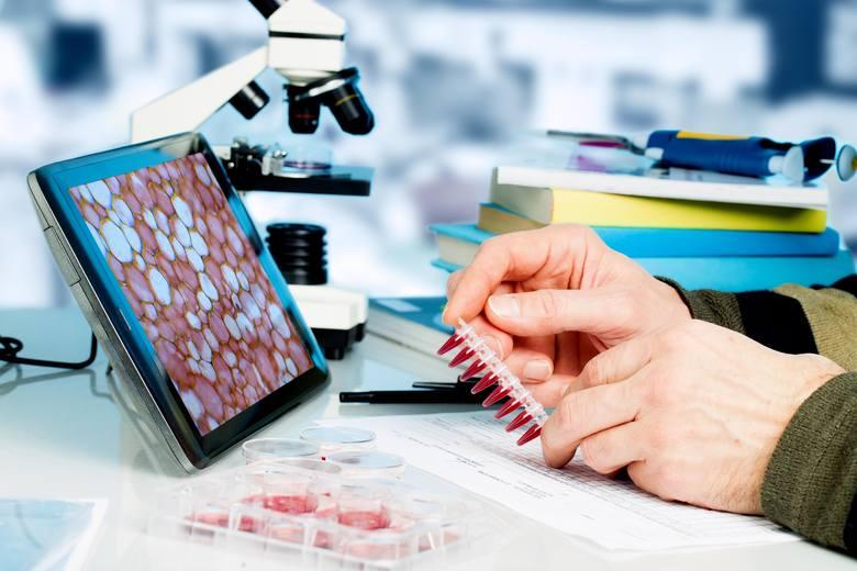 Podstawowym celem badań profilaktycznych jest uchronienie się przed chorobami, które mogą zagrażać naszemu zdrowiu lub życiu. Większość z nich jest bezpłatna