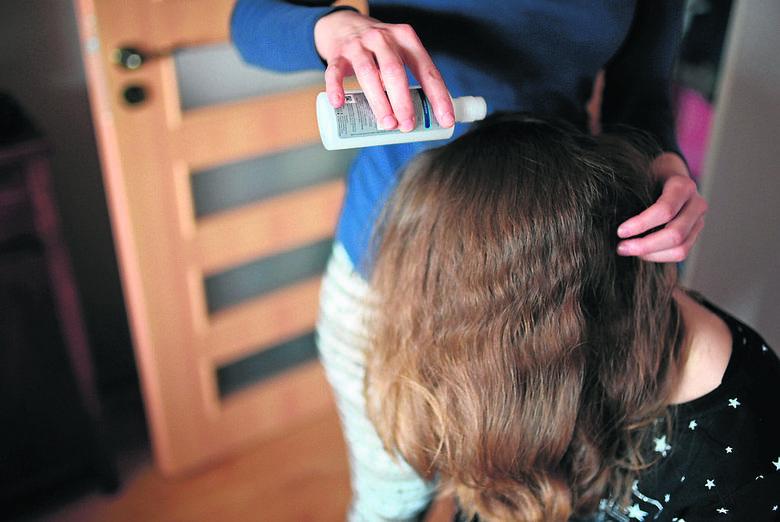 Wszawica w Toruniu! Po latach nieobecności znów opanowuje przedszkola i szkoły