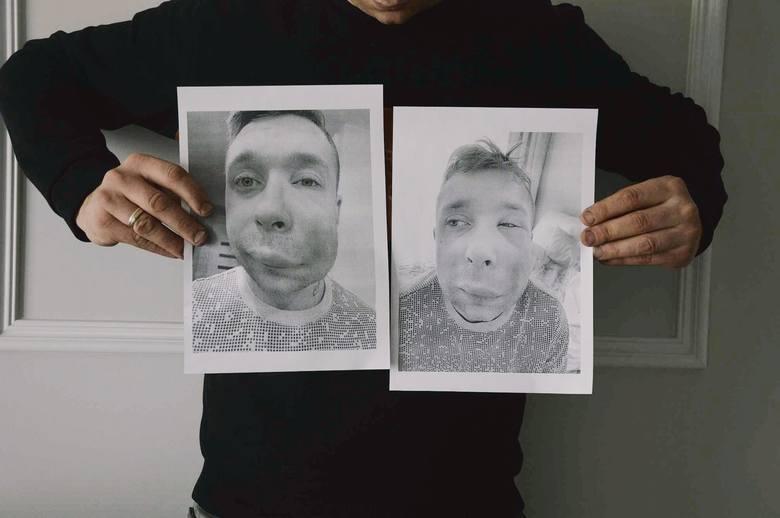 Pan Bartosz pokazuje na zdjęcia, jak wyglądał w kilka dni po przeprowadzonym zabiegu