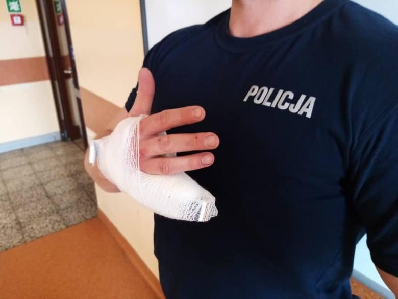 Policjant musiał mieć amputowany kawałek palca