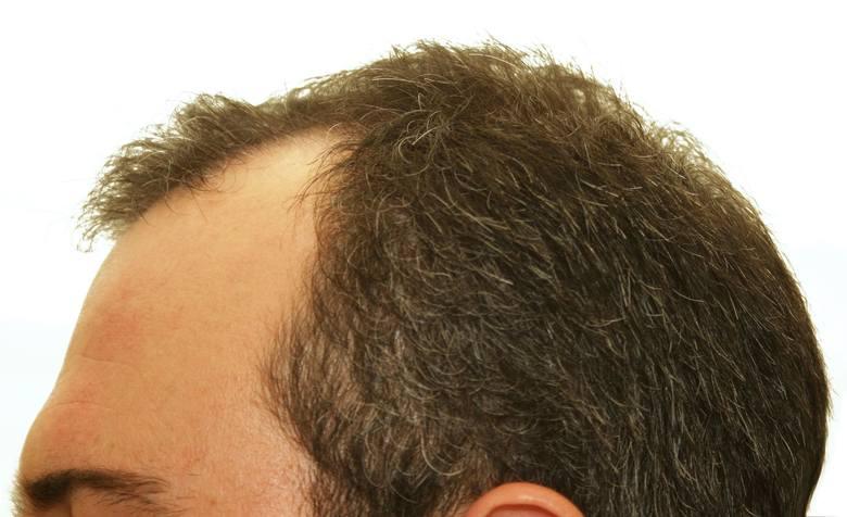 Przeszczep włosów jest ratunkiem dla osób dotkniętych problemem łysienia. Najczęstszym jego typem jest tzw. łysienie androgenowe, które występuje zarówno