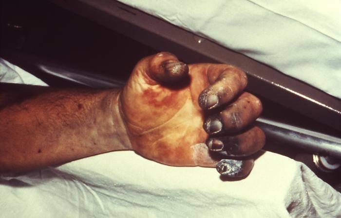 DżumaDo zakażenia dochodzi zwykle w wyniku pokąsania przez pchły, uprzednio zainfekowane w wyniku kąsania chorych szczurów, wiewiórek, nieświszczuków