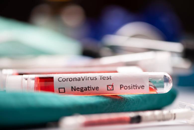 Pięć nowych przypadków zakażenia koronawirusem na Pomorzu 12.07.2020. Jeden z nich dotyczy dziecka z Gdańska