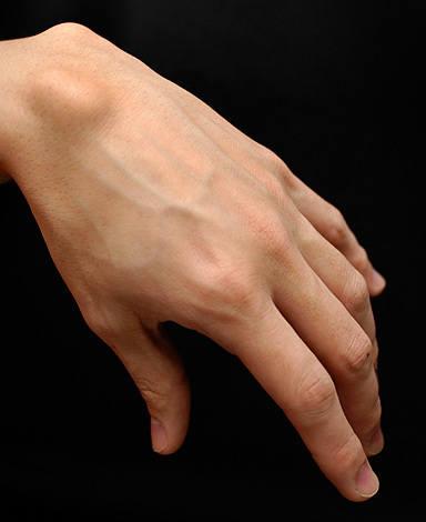 Narośl na nadgarstku jest najczęściej występującym rodzajem torbieli galaretowatej, czyli ganglionu.