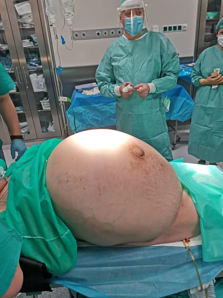 Ginekolodzy ze szpitala w Jaśle, pod kierunkiem lek. med. Sławomira Szpaka, usunęli z brzucha 70-letniej pacjentki 30-kilogramowego guza.