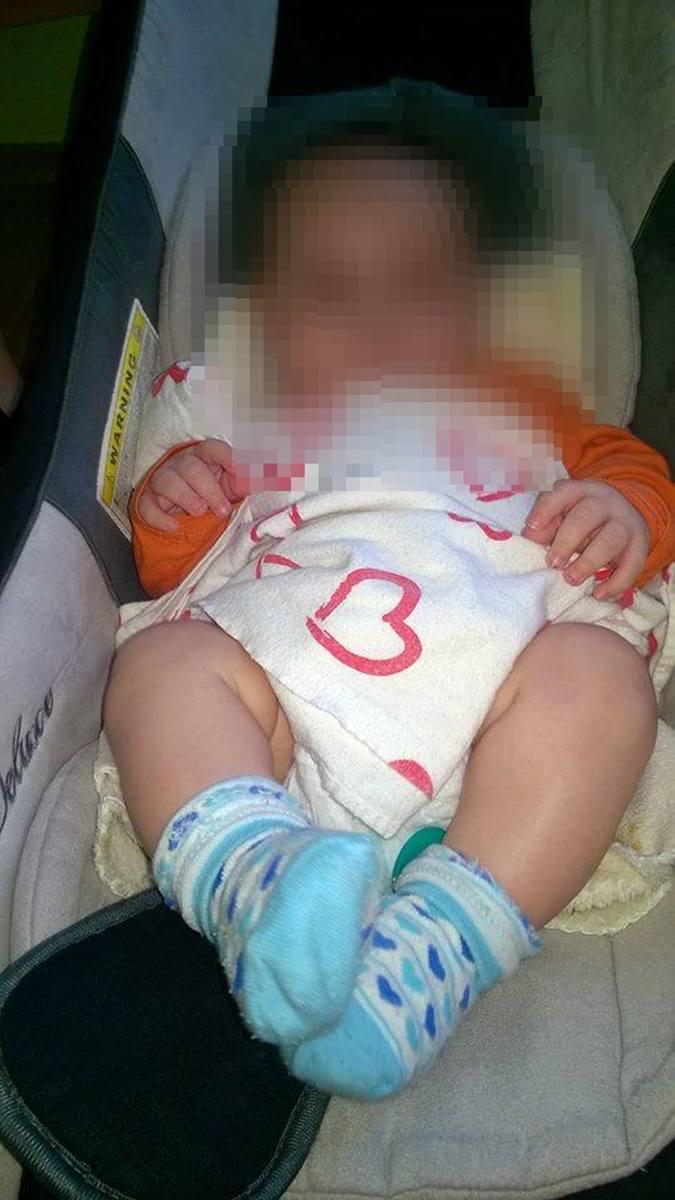 Podejrzenie siniaki u niemowlęcia w Stargardzie. Trzymiesięczny chłopczyk trafił do szpitala