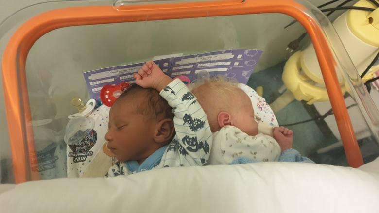 Bliźnięta o różnych kolorach skóry urodziły się w łódzkim szpitalu.