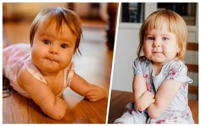 Asia ma 1,5 roku. Urodziła się bez kości promieniowych i kciuków. Jej mama, pochodząca z Torunia Agata Czajkowska, bardzo prosi o pomoc. Trwa zbiórka