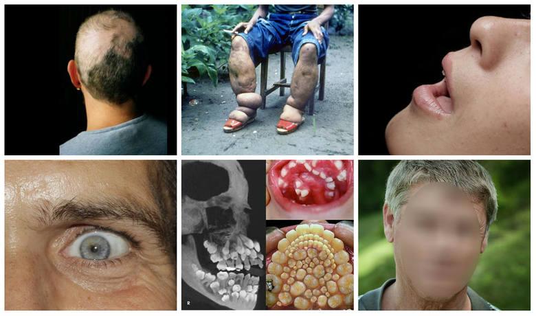 Zdarzają się choroby o tak niezwykłych objawach, że trudno uwierzyć, aby były prawdziwe. Niestety, dziwne, rzadkie choroby często okazują się nieuleczalne,