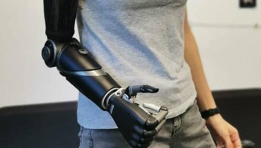 Weronika z protezą bioniczną ILimb Quantum. Prawą rekę straciła w wypadku, do którego doszło w Krakowie.
