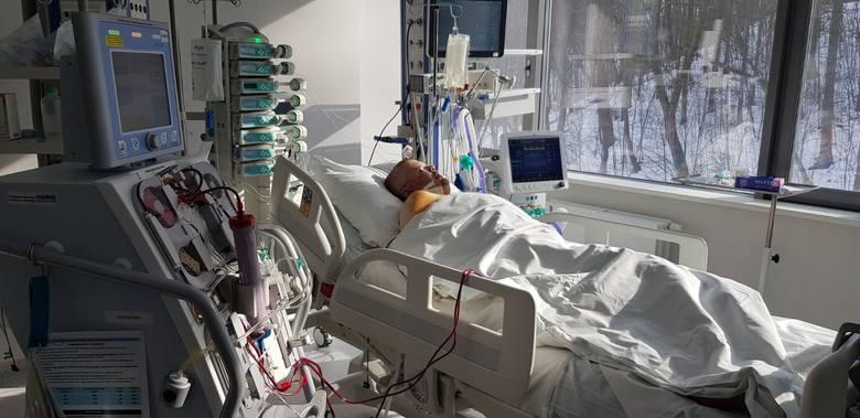 Gdańsk. Lekarze z Uniwersyteckiego Centrum Klinicznego przeszczepili płuca 42-latka, które zniszczył COVID-19