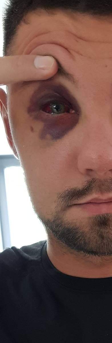 Pobity 32-latek doznał poważnych obrażeń głowy