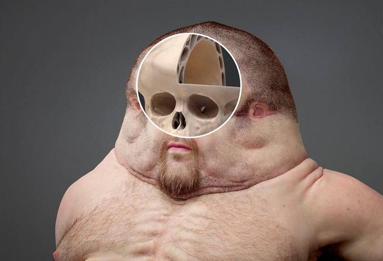 Większa pojemność czaszki przekłada się na rozrośnięte opony mózgowo-rdzeniowe i większą ilość płynu mózgowo-rdzeniowego.
