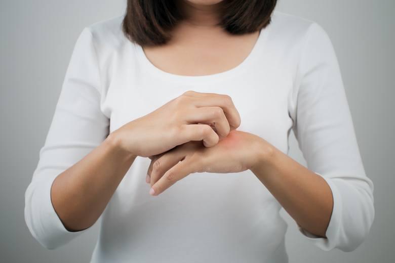 Liszaj płaski jest chorobą zapalną skóry, paznokci i błon śluzowych, charakteryzującą się przewlekłym przebiegiem i występowaniem drobnych, czerwonych