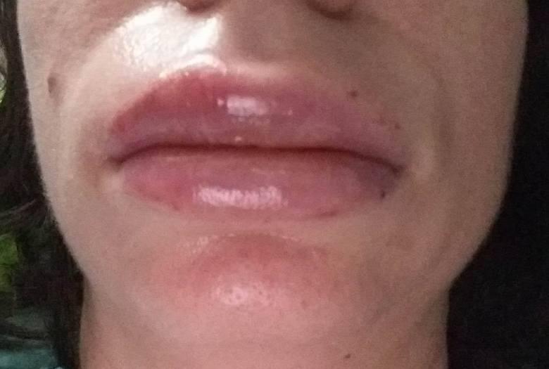 Pani Justyna chciała powiększyć usta. Do dziś żałuje wizyty u kosmetolog
