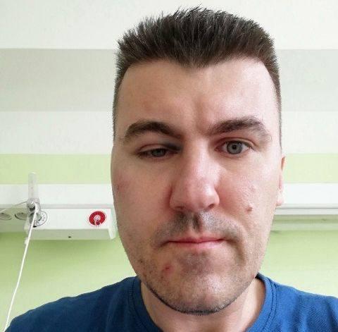 Rafał Machowski: - Zmasakrował moją twarz butelką, bo zwróciłem mu uwagę [ZDJĘCIA]