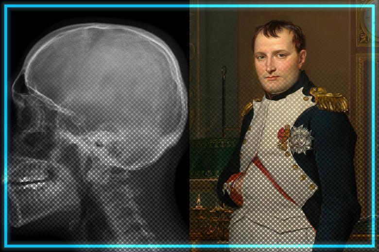 Naukowcy odkryli w czaszce Napoleona Bonaparte obiekt o średnicy 0,5 cala. Sam cesarz swojego czasu twierdził, że przetrzymywali go obcy, co pokrywa