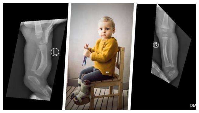 Możesz pomóc dwuletniemu Szymonowi ze Środy Wielkopolskiej stanąć na własnych nóżkach