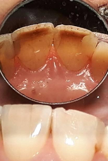 Starte brzegi sieczne, przebarwion zębina składnikami pokarmowymi, linijne pęknięcia szkliwa w siekaczach