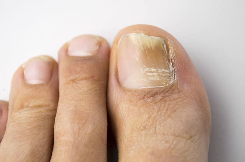 Grzybica paznokci stóp.