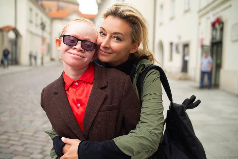 Martyna Wojciechowska od dawna walczy o poprawę losu albinosów z Tanzanii. Zaadoptowała też albinoskę KabulęDodatkowo albinizm jest cechą recesywną.