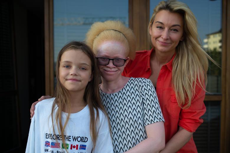 Martyna Wojciechowska od dawna walczy o poprawę losu albinosów z Tanzanii. Zaadoptowała też albinoskę Kabulę