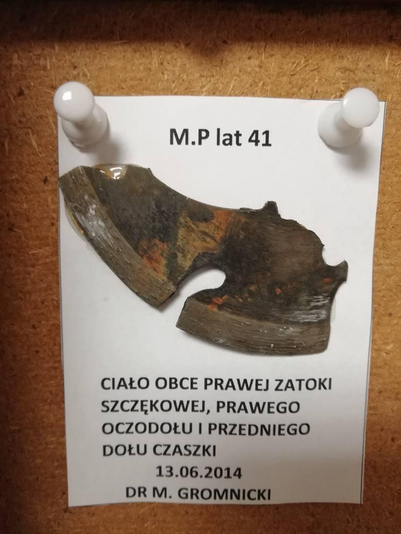 Jak mówi ordynator słupskiego oddziału laryngologii słupskiego szpitala Mirosław Gromnicki, przedmioty umieszczone w gablotach pochodzą z uszu, oczu,