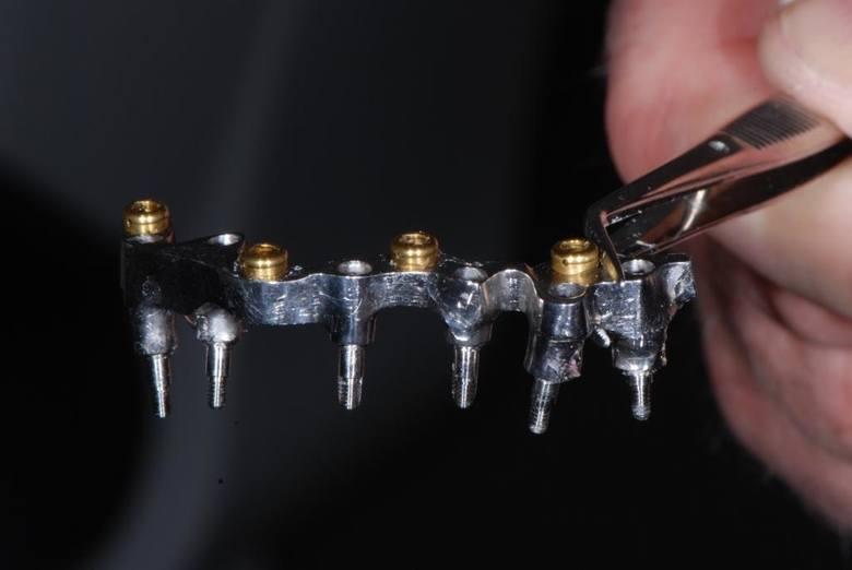 Takie implanty wszczepiono Grzegorzowi Galasińskiemu