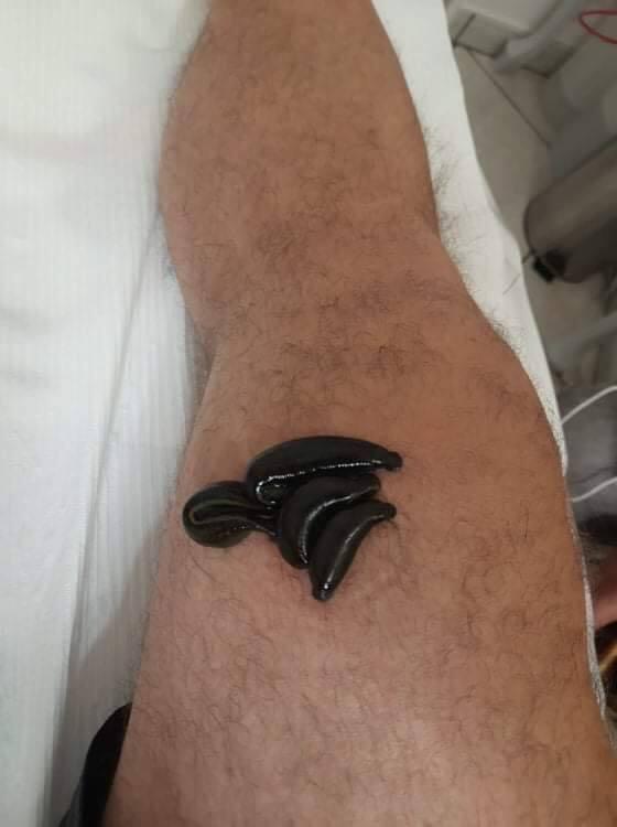 Zabiegi hirudoterapii - leczenia pijawkami lekarskimi, certyfikowanymi w Kraśniku