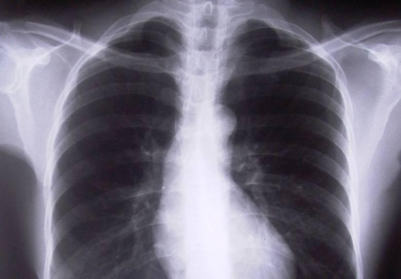 Rak płuc zabija kobiety. To wina smakowych papierosów