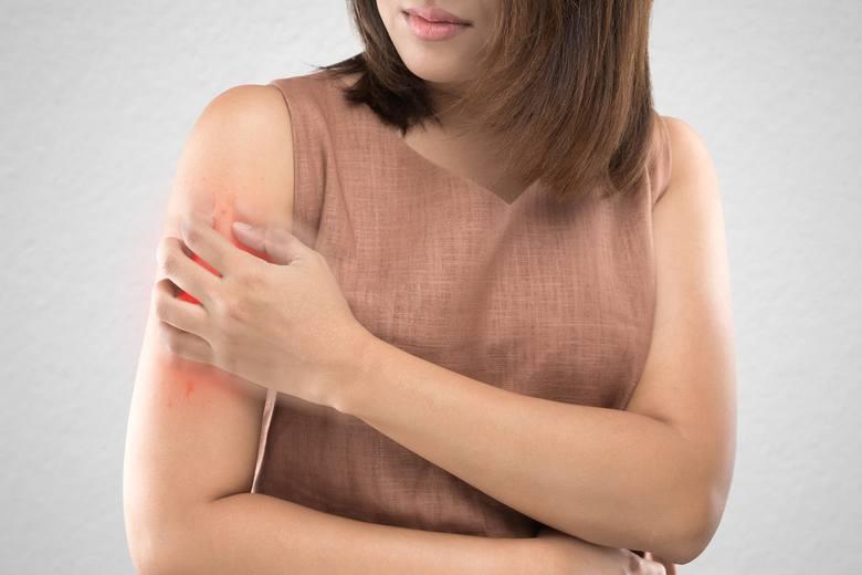 Choroby skóry, w nomenklaturze medycznej nazywane dermatozami, dotyczą różnych warstw skóry – naskórka, skóry właściwej, tkanki podskórnej, gruczołów