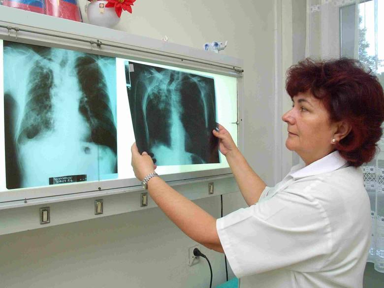 Doktor Agata Obuchowska-Wojtyniak ogląda zdjęcia rentgenowskie swoich pacjentów.