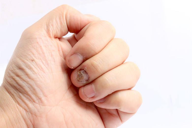 Grzybica paznokci rąk.