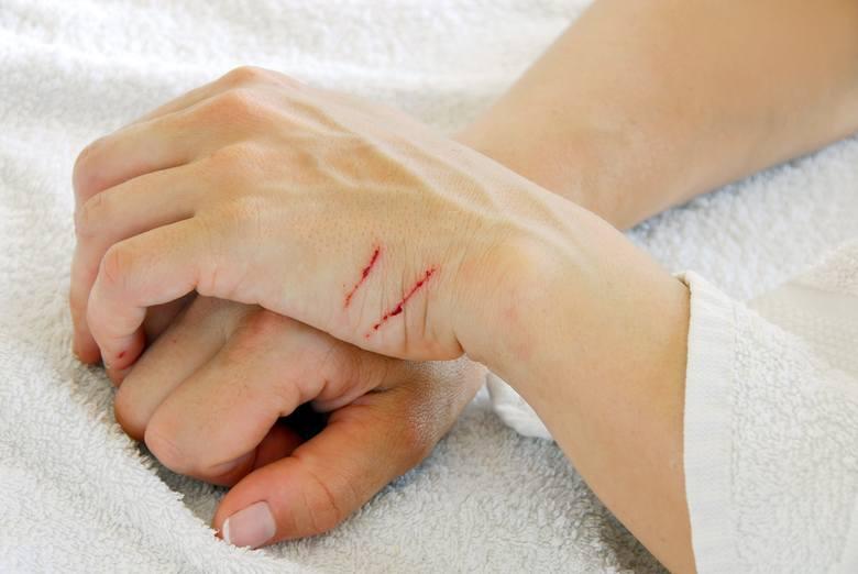Nawet niewielkie zadrapania mogą skutkować powstawaniem blizn, jeśli rana zostanie zakażona, o co nietrudno np. w przypadku podrapania przez kota.