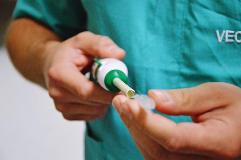 Balon w stawie barkowym zamiast protezy. Nowoczesna metoda leczenia w szpitalu w Brzezinach