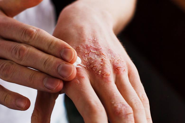 Atopowe zapalenie skóry to choroba wielonarządowa o charakterze autoimmunologicznym i genetycznym podłożu. W społeczeństwie traktowana jest jednak jako