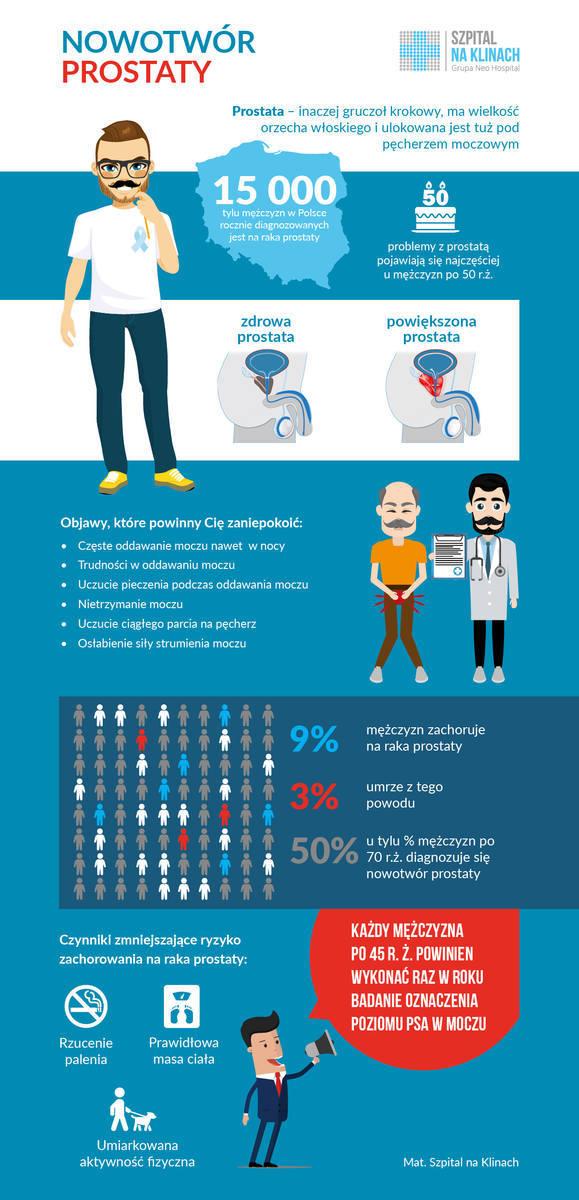 Rak prostaty (rak gruczołu krokowego) – objawy, przyczyny, diagnostyka i leczenie. Czy podwyższony poziom PSA świadczy o raku stercza?