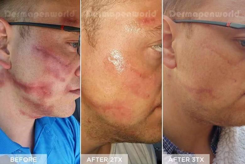 Oryginalny Dermapen 4 w nowoczesnej klinice kosmetologii laserowej i estetycznej Laser Clinic w Kielcach. Zobacz efekty [ZDJĘCIA]