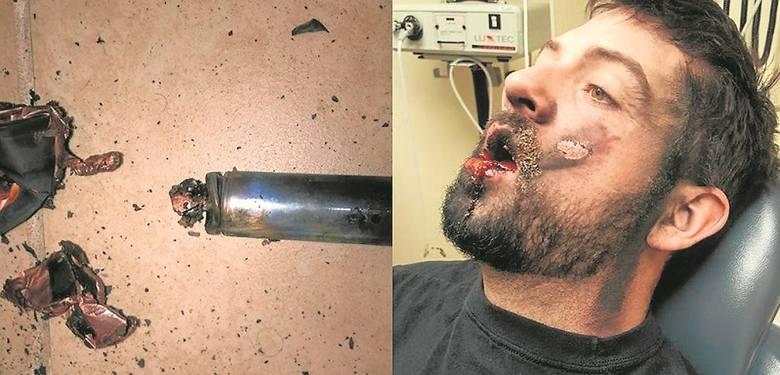 Palenie grozi wybuchem! E-papieros wystrzelił wrzącą substancją