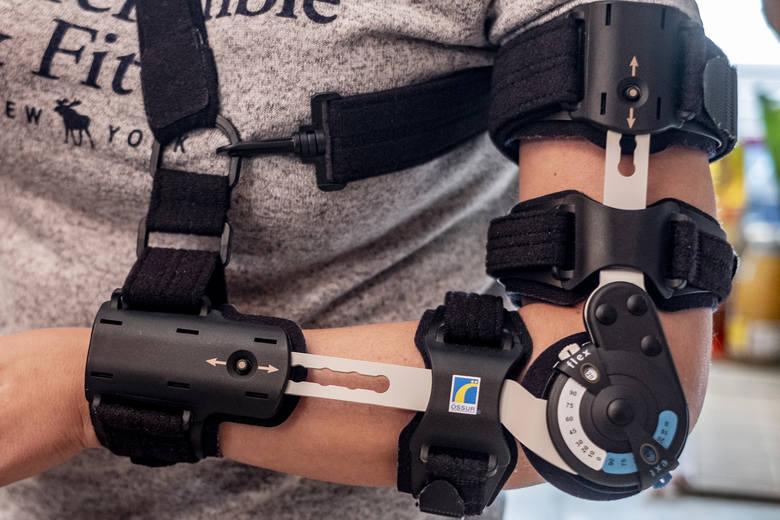 Monika Błaszczyk spędziła w szpitalu dwa tygodnie. W tym czasie przeszła dwie operacje. Lekarze nie mają pewności, że kiedykolwiek odzyska pełną sprawność lewej ręki.<br /> <br /> <strong>Przejdź do następnego zdjęcia -----></strong><br /> <br />